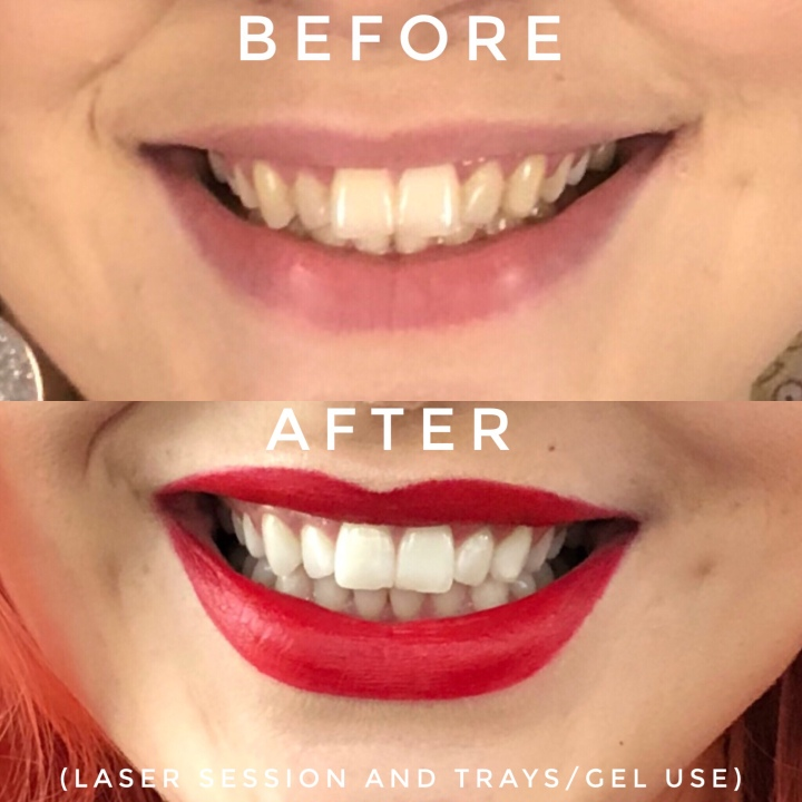 the white smile company before and after